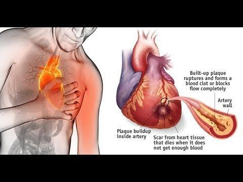 how to clear cholesterol from arteries