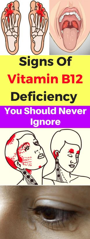 Signs Of Vitamin B12 Deficiency You Should Never Ignore – Today Health People