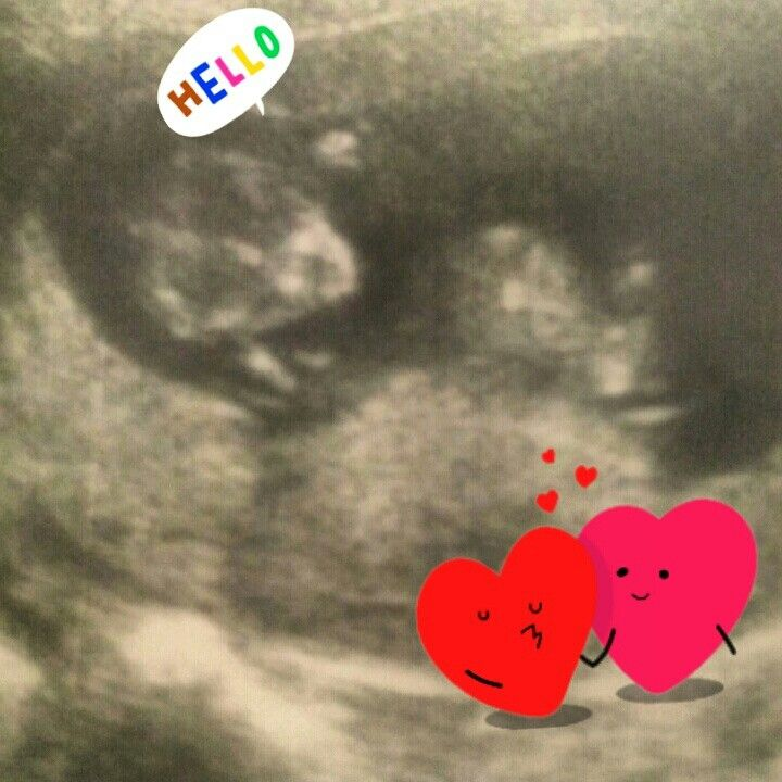 Our first ultrasound. 11 weeks estimated due date March 28, 2015