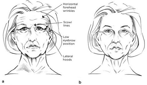 Not as complete as a face lift, a forehead or brow lift can still takes years off the appearance your face. As the name implies, a forehead or brow lift is designed to correct deep forehead wrinkles and those that occur high on the bridge of the nose. It will reposition a low or sagging brow and improves horizontal and vertical facial lines, also known as frown lines. Learn more here:  http://premierokc.com/procedures/facial-rejuvenation/forehead-lift-in-oklahoma-city/