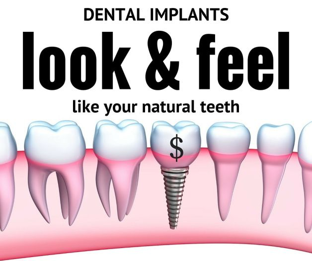 Looking for low cost dental implant treatment? There are some tips to reduce the cost of dental implants and enhance your look & feel like natural teeth.  Visit The Dental Hub in Gurgaon and get affordable and low cost dental implant treatment. #dentalimplants #dentalcare #dentistry #cost #TheDentalHub #gurgaon