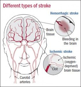 Types of stroke. For ischemic stroke, clot busting drug TPA may be most effective when used within 90 minutes of the onset of symptoms. www.health.harvard.edu