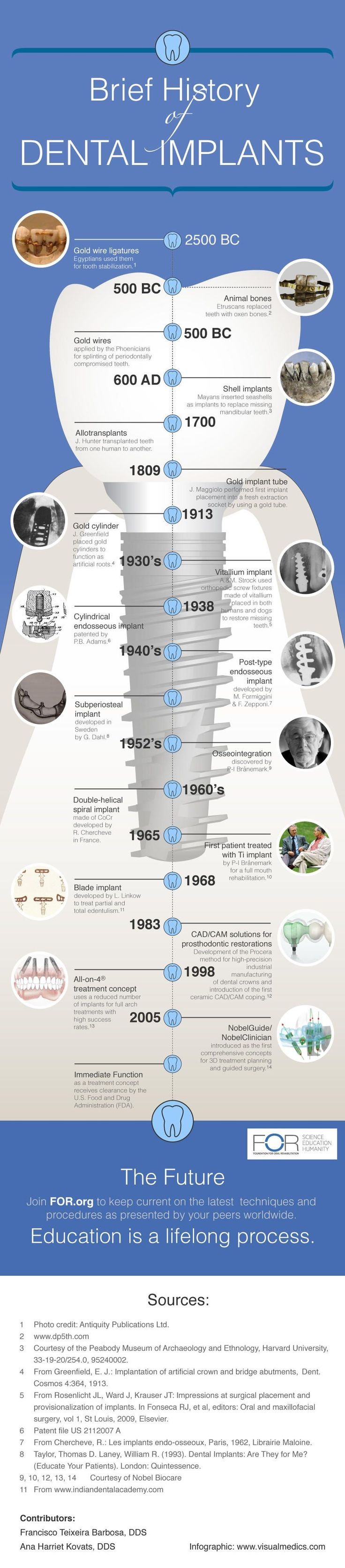 A Brief History of Dental Implants #Dentist #Infographic #dentalimplants