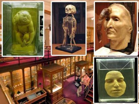 The Mutter Museum- Philadelphia, Pennsylvania, USA  The Mutter Museum, a collection housing pathological specimens and medical anomalies, originally opened its doors to panicked and squirming visitors in 1858.