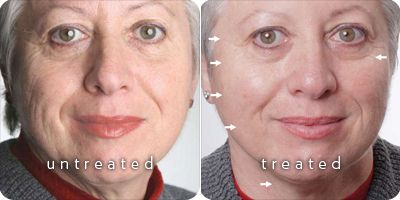 Tru Face Line Corrector- Before and after photo with the product.  For more information contact Lauren at staybeautiful.nuskin@gmail.com.