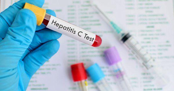 #¿Por qué es peligrosa la Hepatitis C? - LaRepública.pe: LaRepública.pe ¿Por qué es peligrosa la Hepatitis C? LaRepública.pe Se trata de…