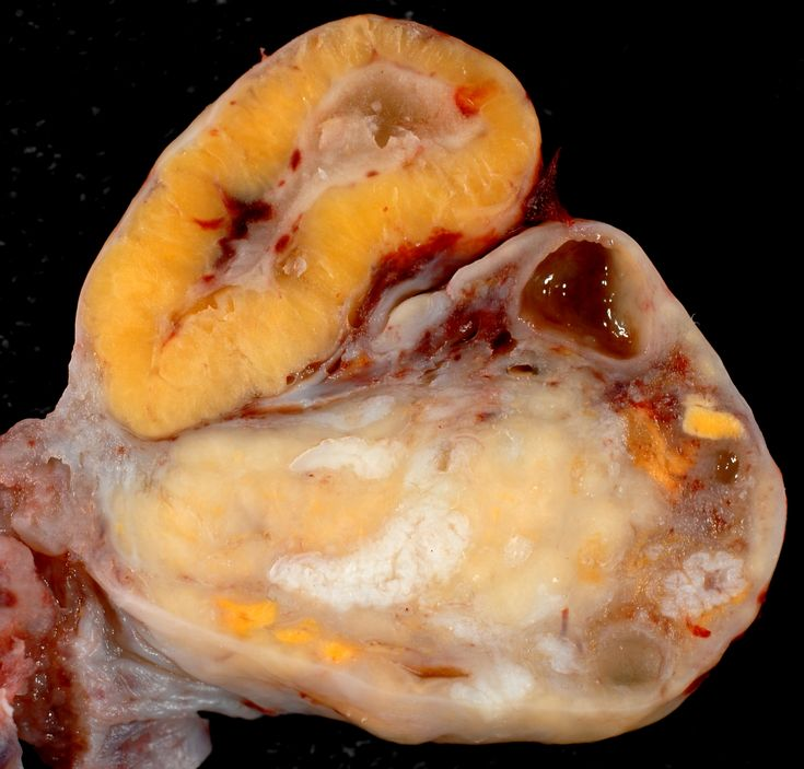 If a conceptus implants, the corpus luteum grows even bigger, to form the so-called corpus luteum of pregnancy. If no pregnancy occurs, the corpus luteum shrinks dramatically to become a corpus albicans (visible as white scars)
