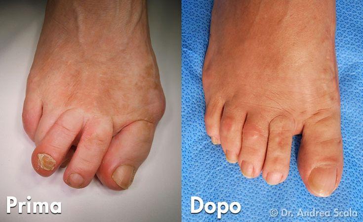 Curare il piede deformato è necessario per recuperare la funzionalità. Non basta correggere solo l'Alluce Valgo ma anche la Metatarsalgia. Dr. Andrea Scala