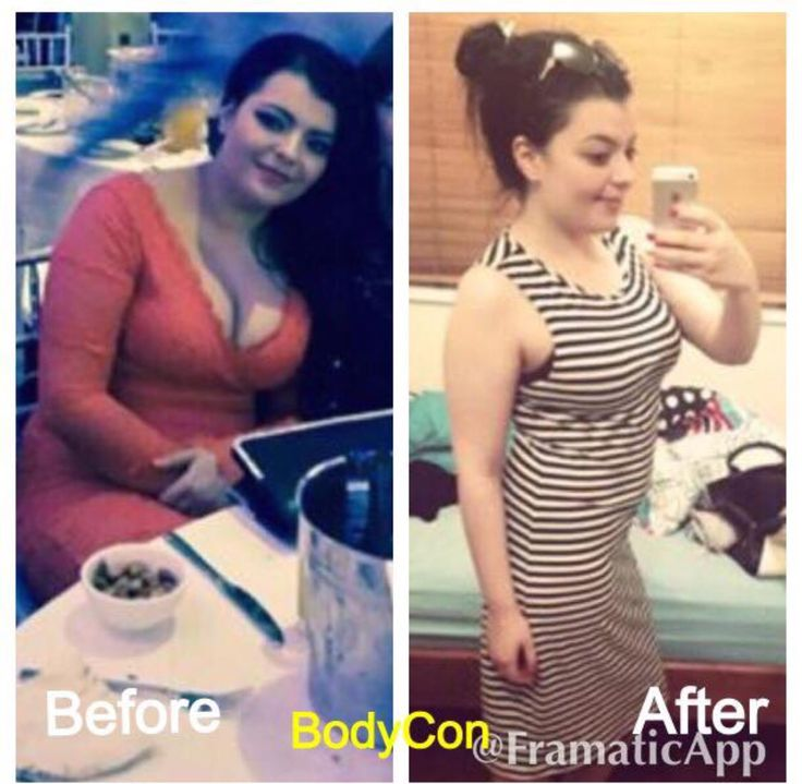 15kgs down on 2 months amazing Thanks to BodyCon's weightloss  pills