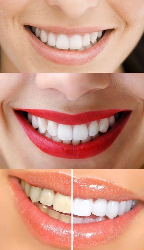 Como Clarear Os Dentes Naturalmente Em Casa Passo A Passo