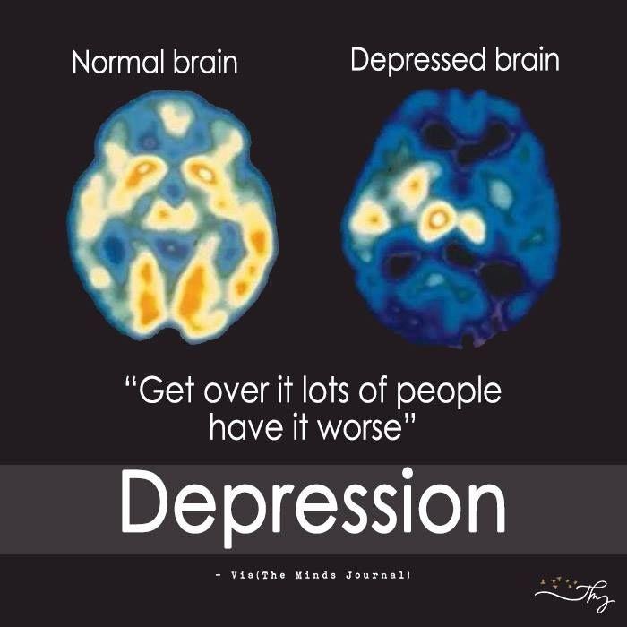 Psychopaths Brain Vs Normal Brain Golfclub