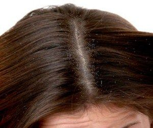 how to get rid of severe dandruff home remedy