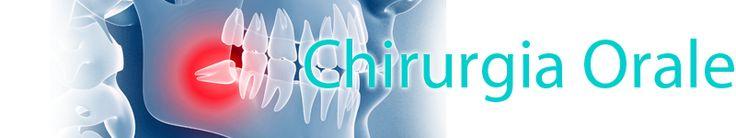 Linee Guida Chirurgia Orale http://www.studiodentisticobalestro.com/2014/03/raccomandazioni-cliniche-in.html