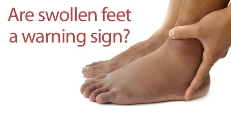 Swollen feet? Learn more about what causes temporary & occasional swelling.: Wordt Pedicures
