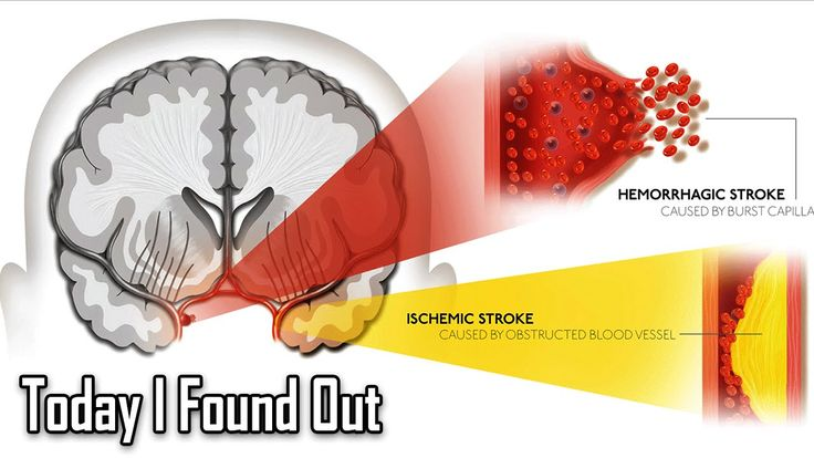 The Physiological Factors Behind Two Different Types of Strokes
