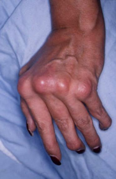 Arthritis Hand Pain Symptoms >>> You can find out more details at the link of the image.