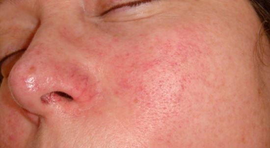 Rash Itchy Autoimmune Disease