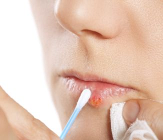How To Get Rid Of Fever Blisters On Lips Overnight