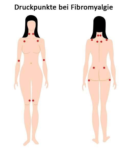 Fibromyalgie - Symptome - Besser Gesund Leben