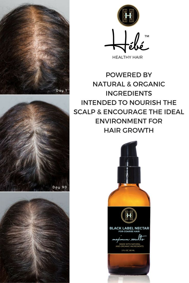 1843 best stop hair loss and feel great images on pinterest | hair
