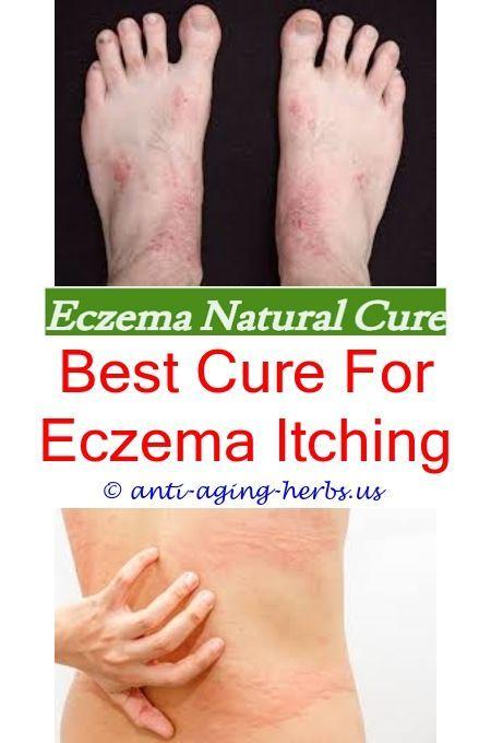 Eczema During Pregnancy >> How To Treat Eczema During Pregnancy Severe Infant Eczema Face Avene