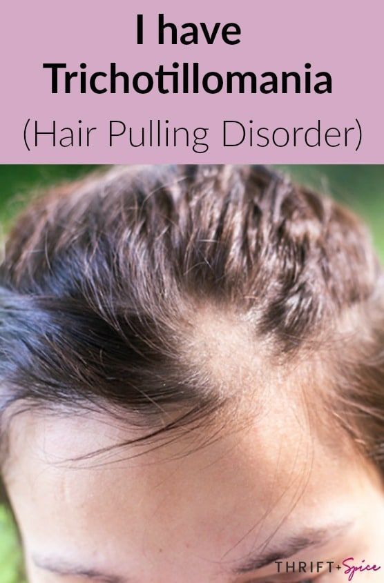 My Hair Pulling Disorder Hair Pulling Laser Hair Loss Treatment Baldness Solutions