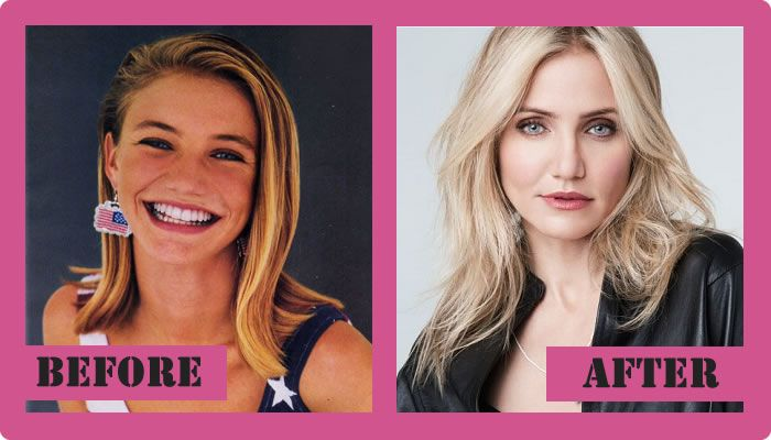 Cameron Diaz Plastic Surgery Before And After Cameron Diaz Plastic Surgery #CameronDiazplasticsurgery #CameronDiaz #gossipmagazines