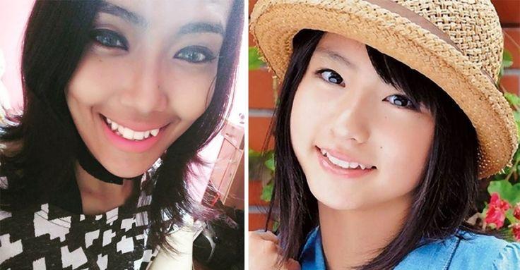 "Schiefe Zähne sind ""Anti-Aging""-Trend in Japan! #News #Beauty"