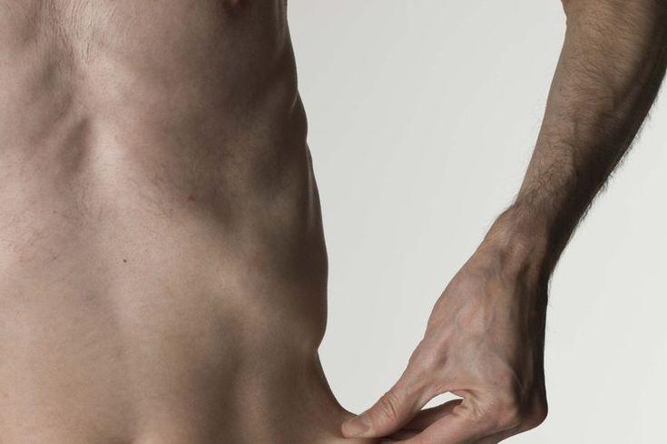 Signos y síntomas de comer muy pocas calorías. El cuerpo humano requiere cierta cantidad de calorías para funcionar, incluso aquellos que son sedentarios. No consumir suficientes calorías para cumplir con esas necesidades básicas puede provocar una variedad de molestias físicas y mentales, de leves ...