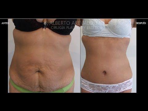 Fotos de Antes y Despues de Cirugia de Nariz, Liposuccion, Aumento de Senos y Abdominoplastia en Bogota | Dr Alberto Arevalo - YouTube #abdominoplastia