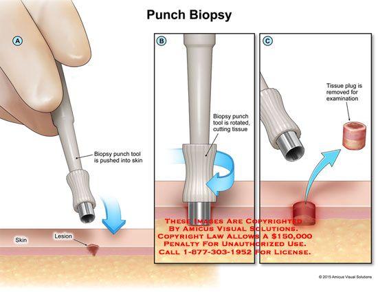 Pin On Small Fiber Neuropathy