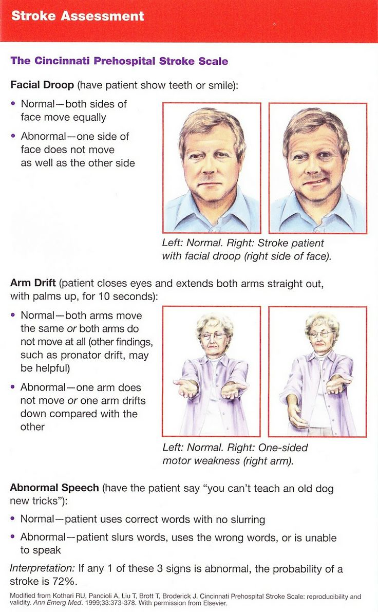 19 best images about May is Stroke Awareness Month on Pinterest ...