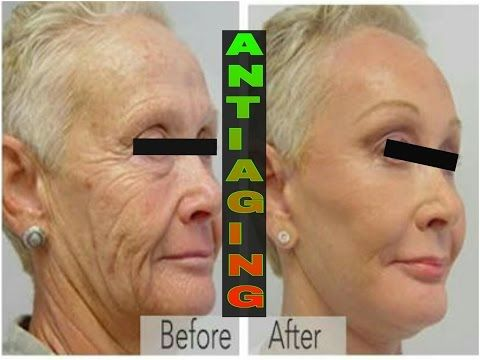 Anti Aging Skin Care / Home Remedy to prevent wrinkles, fine lines, dark Spots / DIY COFFEE SCRUB - YouTube