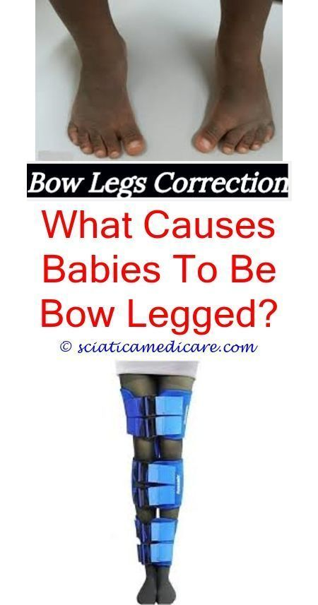 bowlegs remedy femoral bowing - boots for bow legs.bow ...