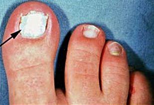 Eliminate white toenail fungus.  http://www.eliminatetoenailfungus.com/white-toenail-fungus/