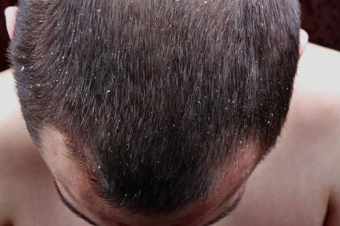 Dandruff is a condition in which too much flaky skin is shed from the scalp, which occurs when new skin cells are overproduced. People with dandruff often have itchy scalps.