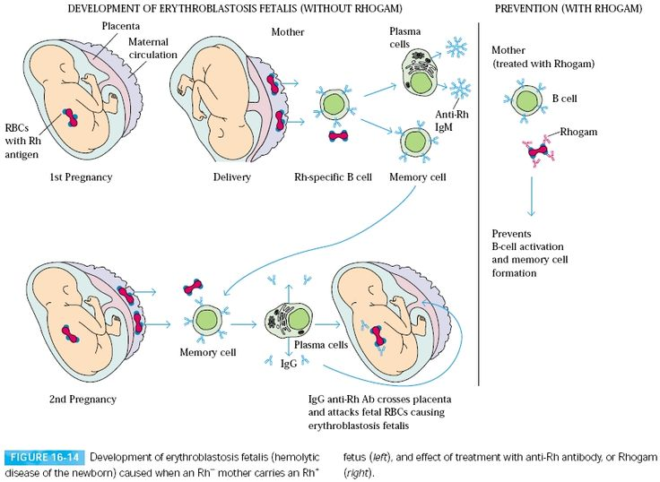 Hemolytic disease of the newborn develops when maternal IgG antibodies specific for fetal blood- group antigens cross the placenta and destroy fetal red blood cells. The consequences of such transfer can be minor, serious, or lethal. Severe hemolytic disease of the newborn, called erythroblastosis fetalis, most commonly develops when an Rh+ fetus expresses an Rh antigen on its blood cells that the Rh– mother does not express.