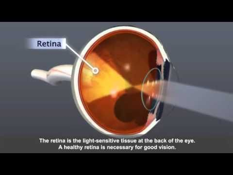 This video looks at diabetic retinopathy, the most common eye disease and a leading cause of blindness in people with diabetes.