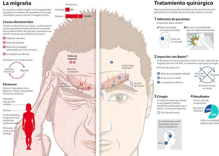 Se define como tal a la cefalea que persiste durante al menos 15 días de cada mes, durante más de tres meses, siempre que mantenga las características de la migraña durante al menos 8 días al mes. Aunque aparentemente ésta es una definición clínica muy precisa, en la práctica no lo es tanto, dado que la principal causa de los síntomas que sugieren una migraña crónica se encuentra en el abuso de fármacos analgésicos, una forma de cefalea que no está relacionada etiopatogénicamente con la…