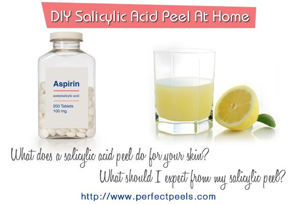 So You Want to Do Your Own Salicylic Acid Chemical Peels?