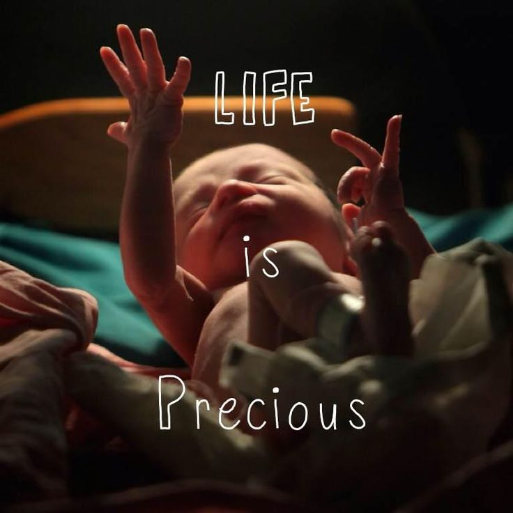 Life is precious. #prolife