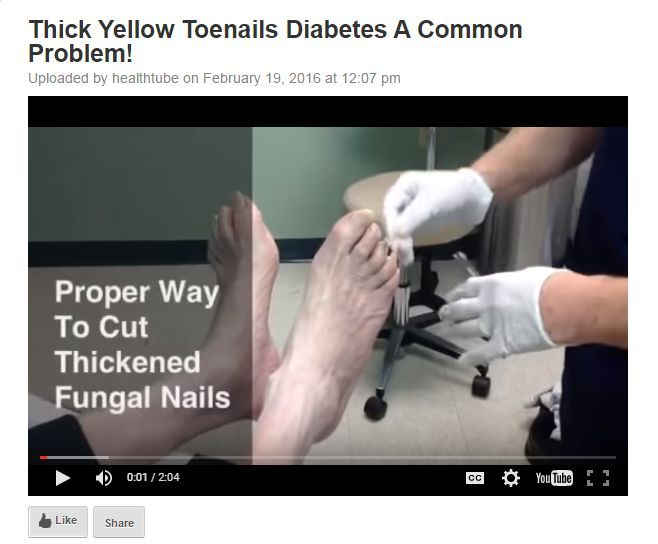 Thick Yellow Toenails Diabetes – Yellow toenails are not unusual in individuals. They might be caused from afflictions including chronic leg swelling and diabetes, or smoking. More often than not, yet, yellow toenail fungus causes them. This cause other symptoms for example thick, lifted, or otherwise deformed toenails and is really unsightly. http://healthtube.biz/thick-yellow-toenails-diabetes-a-common-problem/