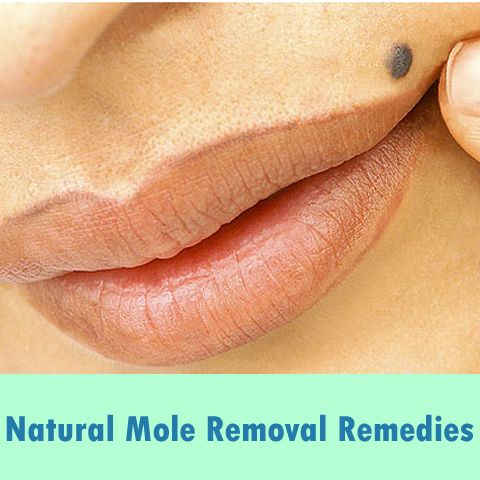 How to get rid of raised moles on your skin? Remedies for Natural Mole Removal at home. Homemade creams for removing malignant moles on body.