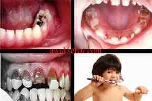 Cara Merawat Dan Menjaga Kesehatan Gigi Anak