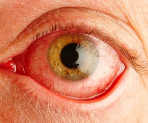 Chronic Red Eye Treatment