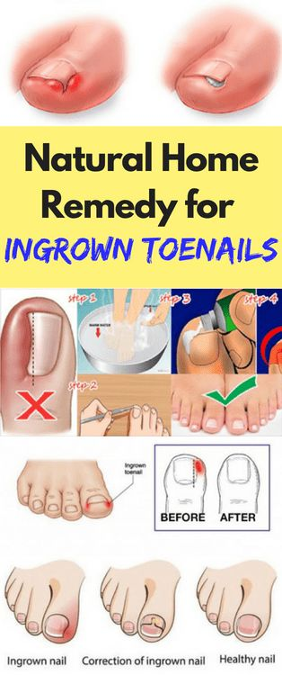 Natural Home Remedy for Ingrown Toenails - FHL
