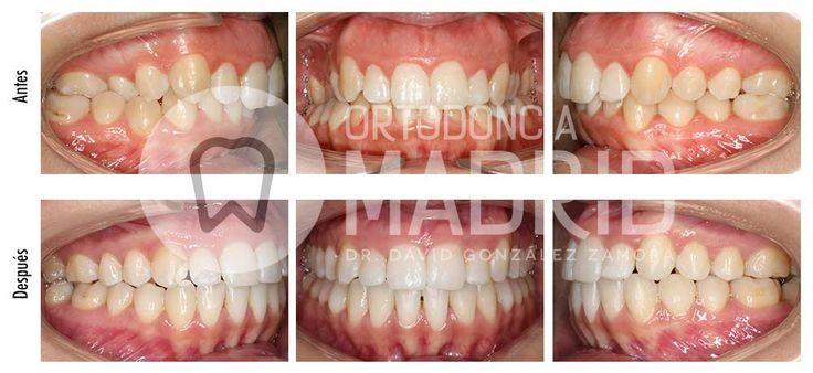 Sonrisa gingival: Clase II con mordida cruzada y sonrisa gingival tratado con sistema damon y microimplantes