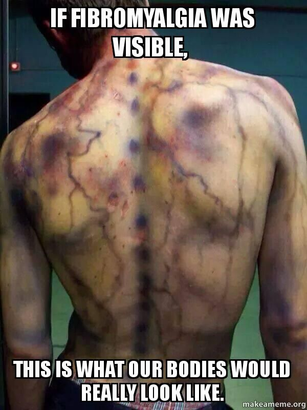 If Fibromyalgia was visable, this is what our bodies would really look like.