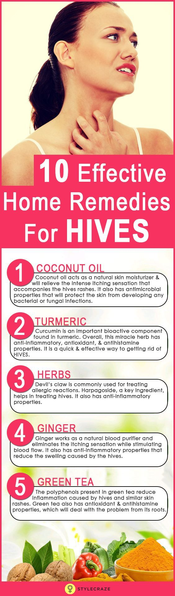 10 Effective Home Remedies For HivesSabina Sayal