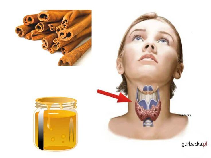 Miód i cynamon to produkty, które połączone razem potrafią zwalczyć wiele dolegliwości, ale także zapobiegają przed groźnymi chorobami.